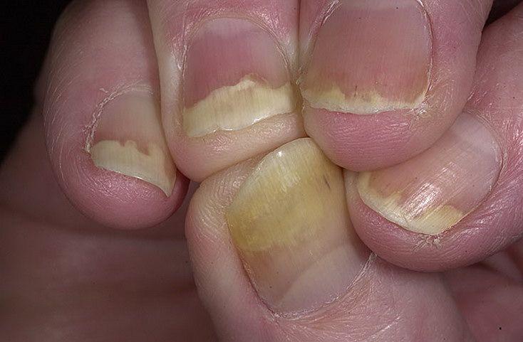 Ногти псориаз