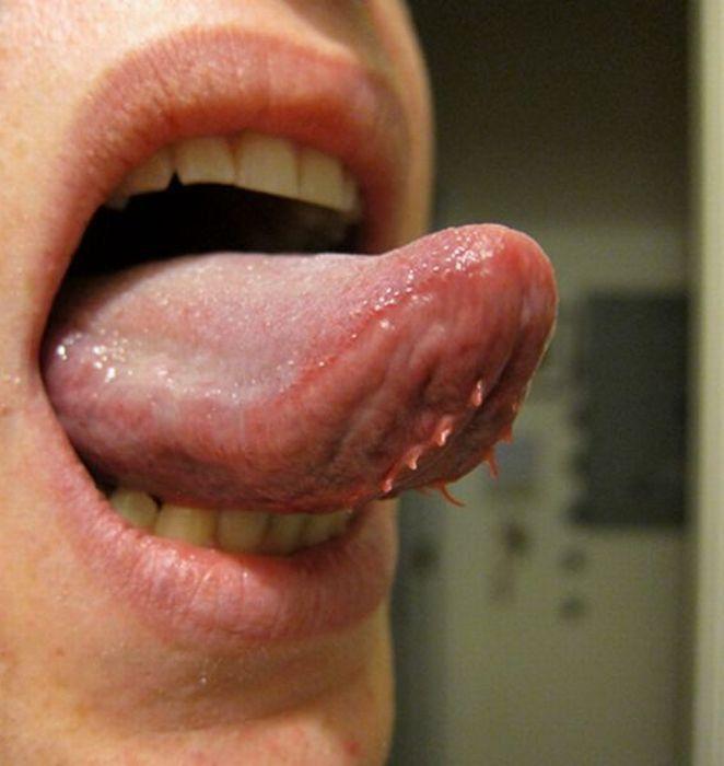 Папиллома на языке: фото, причины, лечение, симптомы и удаление