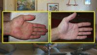Фото до и после использования березового дегтя при псориазе рук