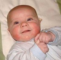 Фотография проявления симптомов диатеза у ребенка