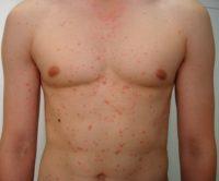 Фото первых симптомов псориаза