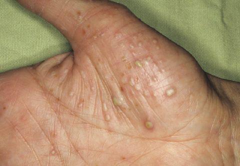 Лечение псориаза в Киеве