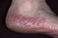 Фото симптомов ладонно-подошвенного псориаза