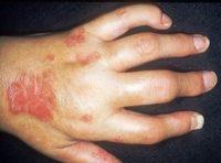 Фото, как выглядит псориатический артрит