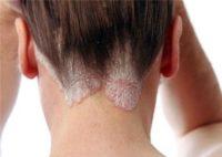 Фото проявления псориаза на шее