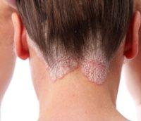Фото проявления псориаза на голове
