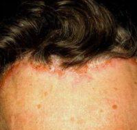 Фото псориаза на голове
