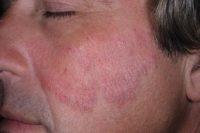 Фото псориаза на лице