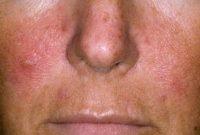 Фотография псориаза на лице