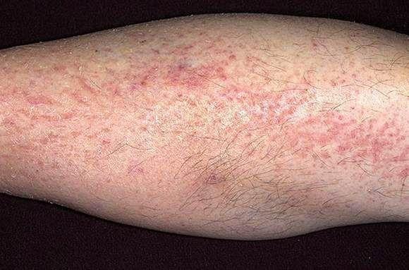 Псориаз на ногах фото лечение диета