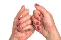 Фото псориаза на руках