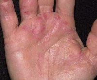 Фото начальной стадии псориаза на руках
