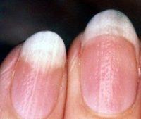 Фотография, как выглядит псориаз ногтей