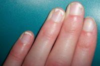 Фото проявления псориаза ногтей на руках