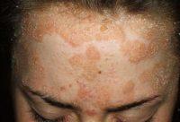 Фото симптомов псориаза