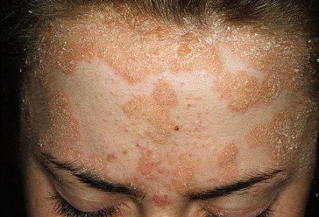Гормональная и негормональная терапия в лечении псориаза