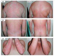 Фото до и после лечения псориаза в домашних условиях