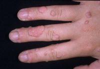 Фотография множественных бородавок на пальце руки, которые нужно вывести