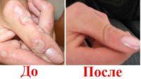 Фото до и после лечения бородавок на пальцах рук