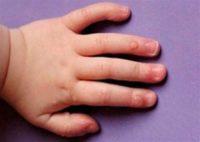 Фото бородавки на руке у ребенка