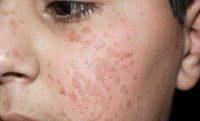Фото бородавок на лице