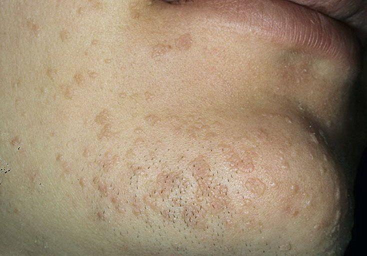 В. и. киселев вирусы папилломы