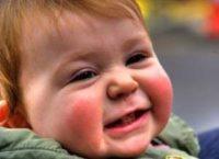 Фотография, как выглядит диатез у грудного ребенка