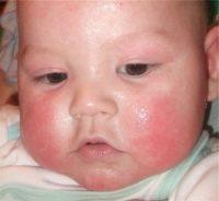 Фото диатеза у грудничков на лице