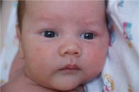 Фотография симптомов диатеза у ребенка на щеках