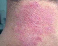 Фотография проявления симптомов нейродермита