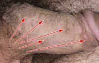 Фотография проявления симптомов остроконечных кондилом у мужчин