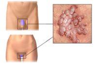 Фотография симптомов папиллом на интимных местах у женщин