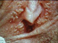 Фотография симптомов папилломатоза влагалища