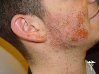 Фотография проявления симптомов пиодермии