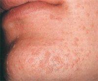 Фото, как выглядят плоские бородавки на лице