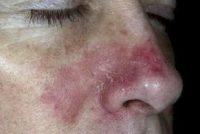 Фотография проявления симптомов себореи на лице