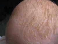 Фото себореи у грудничков на голове