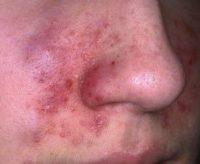 Фото, как выглядит себорейный дерматит на лице