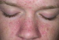Фотография проявления симптомов себорейного дерматита на лице