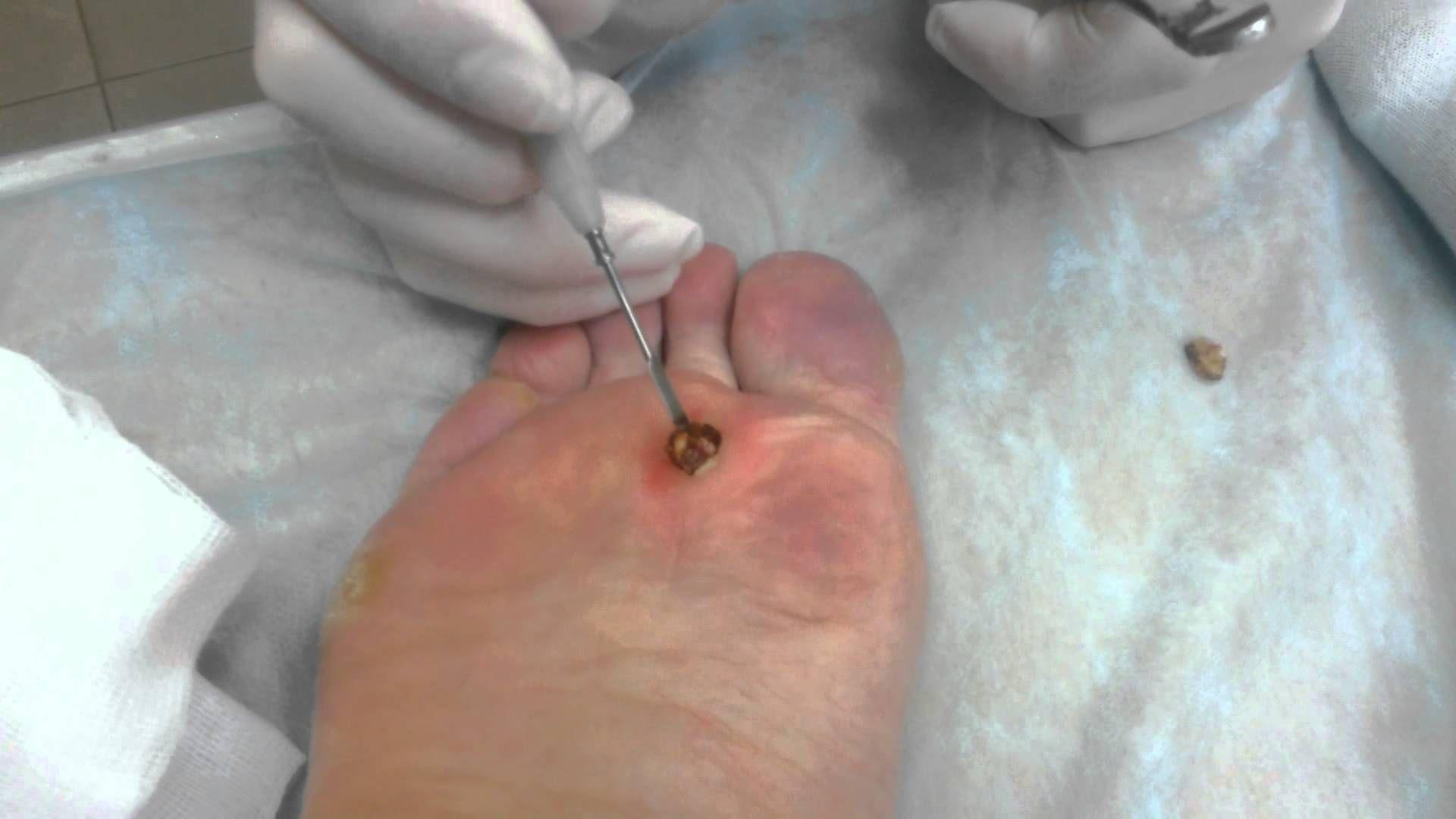 Бородавки между пальцем на ноге