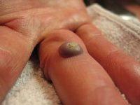 Фото, как выглядит бородавка на руке