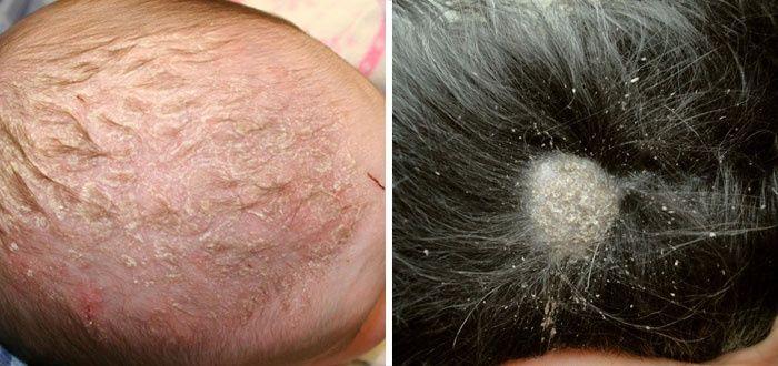 Грибок волосистой части головы и гладкой кожи 39