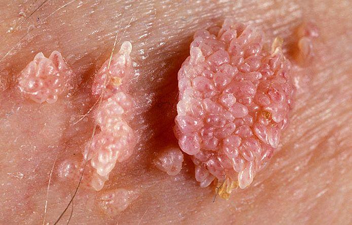 Остроконечные кондиломы: фото, лечение, причины и симптомы