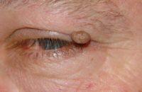 Фотография папилломы над глазом