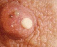 Фото папилломы на груди