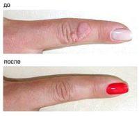 Фотография до и после процедуры удаления бородавки с помощью лазера