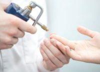 Фотография, как выглядит удаление бородавок жидким азотом