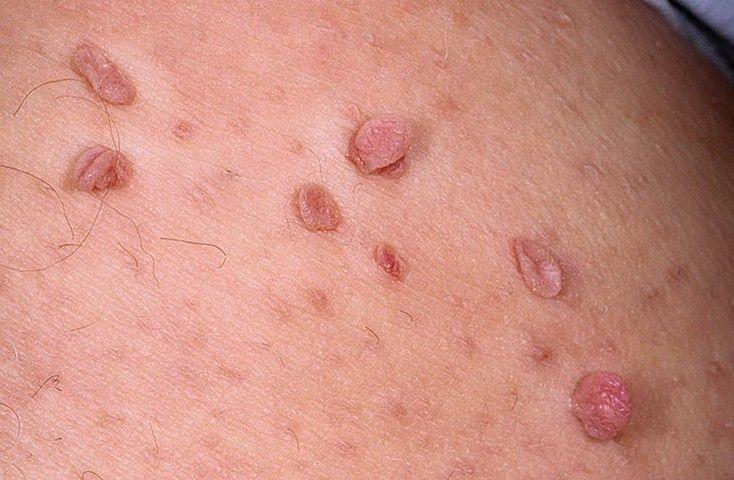 Папиллома чешется: покраснела, болит и что делать когда чешется