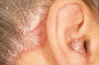 Фотография себорейного дерматита кожи головы