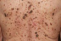 Фото себорейного кератоза кожи спины